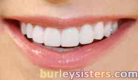 Lamina Diş Fiyatları