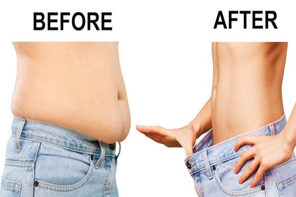 Liposuction yaptırma merkezleri, Liposuction yapan merkezler, Liposuction yaptırmada doktorun önemi