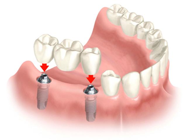 implant fiyatlarının belirlenmesi, implant fiyatları nasıl belirlenir, implant fiyatlarının belirlenmesini etkileyen etkenler