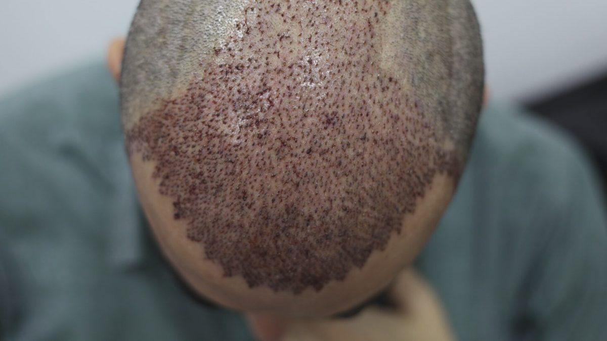 İstanbul Saç Ekimi Deneyimi