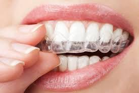 görünmez diş teli avantajları, görünmez diş teli kullanımı