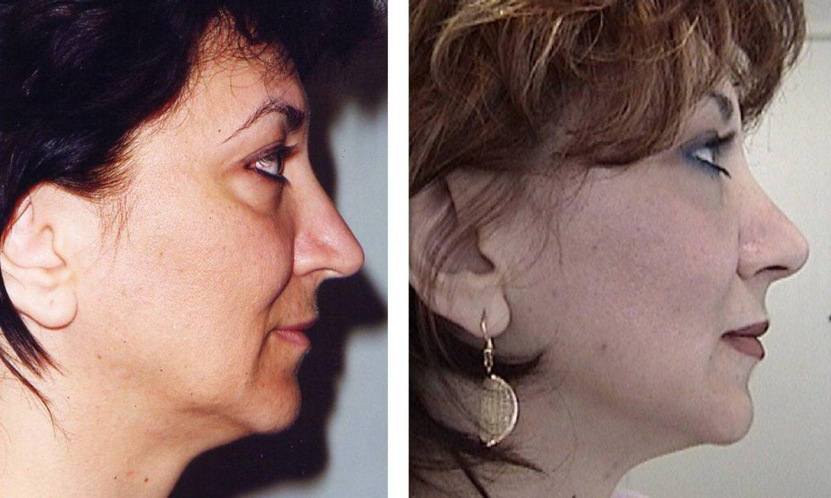 Profesyonel Yüz Germe Ameliyatının Farkı