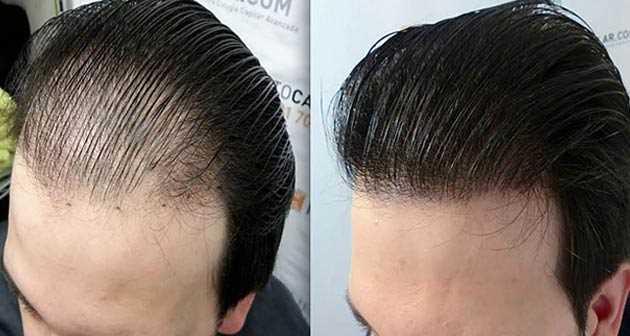 En İyi Saç Ekim Merkezleri Hakkında Bilinmesi Gerekenler