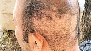 Saç ekim doktorunun tecrübesi neden önemli?