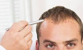 Saç Ekim Merkezlerinin Fiyatları