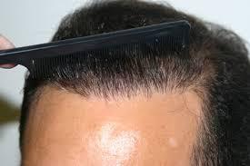 En iyi saç ekim merkezlerine ulaşım nasıl olur?