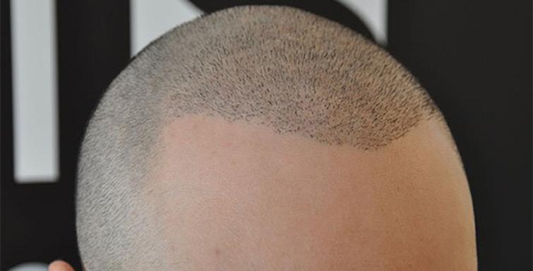 saç ekimi merkezi, deneyimli saç ekimi merkezi, saç ekimi yaptırma
