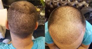 En İyi Saç Ekim Merkezlerinin Doktorları