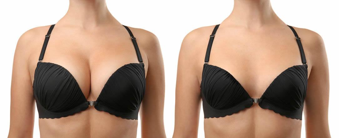 Göğüs Küçültme Estetiği Ameliyatı