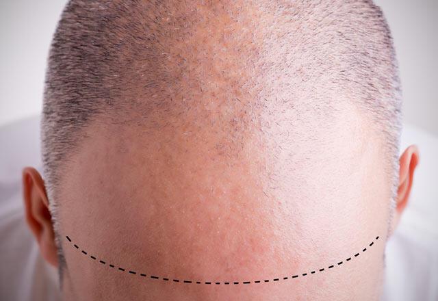 Şeker hastalarına saç ekimi yapılır mı?