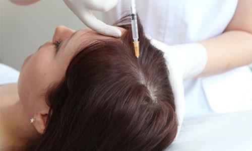 Sağlıklı Saçlar İçin Mezoterapi