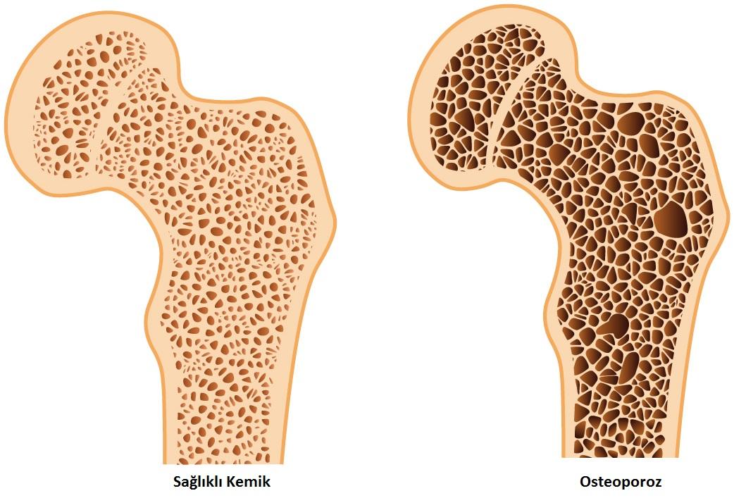 Osteoporoz nedir? Nasıl tedavi edilir?