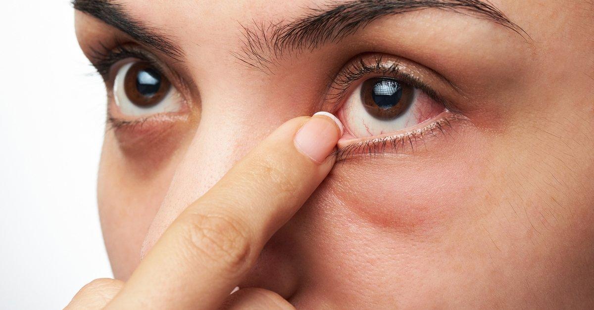 Göz alerjisinin belirtileri nelerdir?