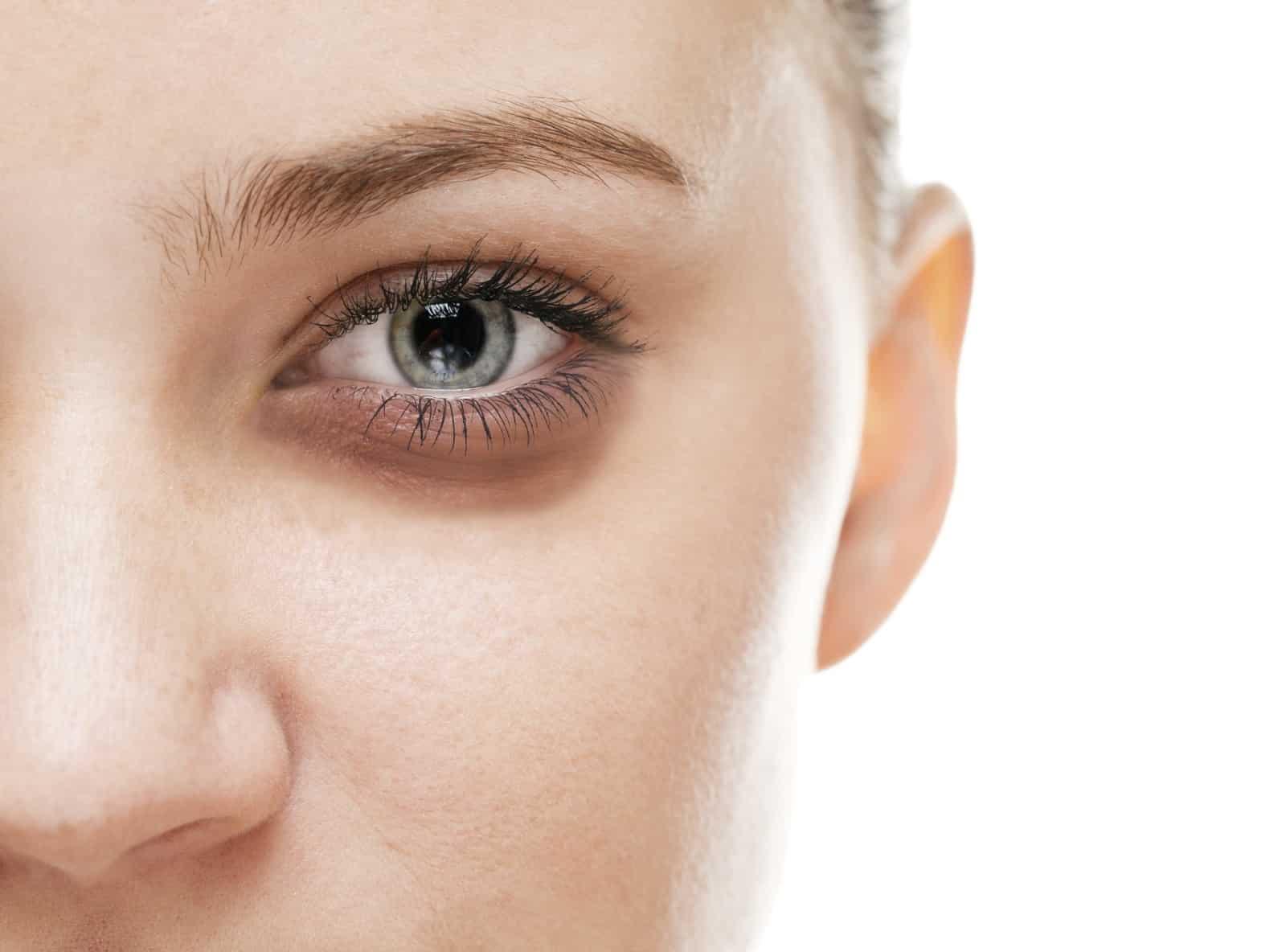 göz altı morlukları, göz altı morluklarından kurtulma, göz altı morluğu nasıl geçer